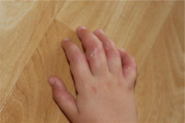 Водянистые пузырьки на руках: высыпают, появились