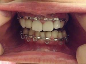 Шина при переломе челюсти: снятие, шинирование