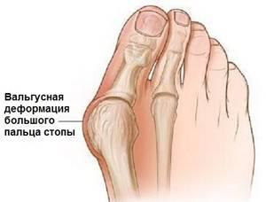 Болит шишка на ноге у большого пальца: что делать, чем лечить