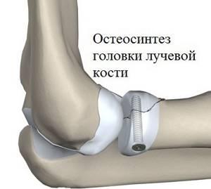 Перелом головки лучевой кости локтя: лечение и восстановление