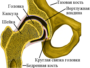 Перелом шейки бедренной кости: классификация, лечение