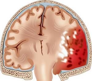 Гематома головного мозга: субдуральная, эпидуральная, симптомы