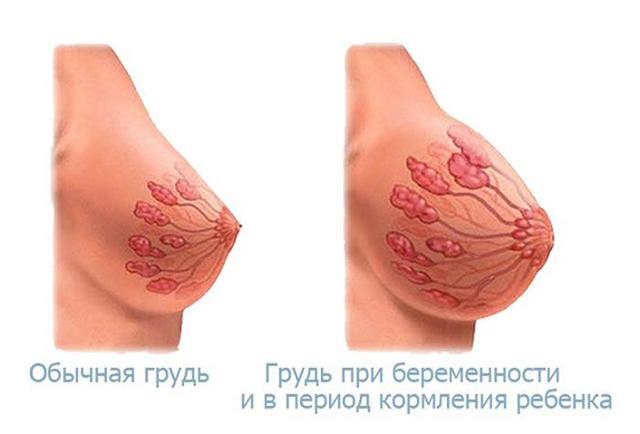 Почему болят соски у девушек: грудь, причины, болевые ощущения
