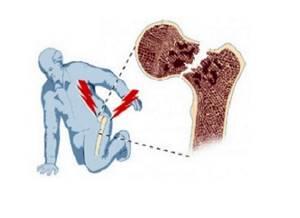Перелом шейки бедра в пожилом возрасте: симптомы, реабилитация