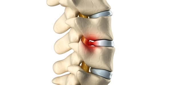 Массаж при компрессионном переломе позвоночника: техника