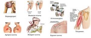 Как лечить шейны остеохондроз форум