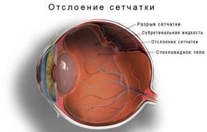 Резкая боль в глазу: острая, стреляющая, слезотечение, причины