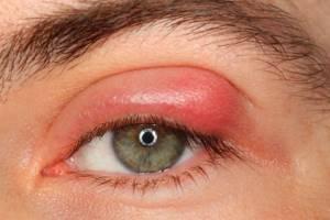Опухло веко над глазом и болит: верхнее, причины, распухло