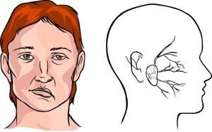 Перелом основания черепа: выживаемость, последствия