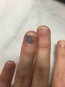 Ушиб пальца на руке: что делать, в домашних условиях