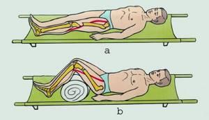 Чрезвертельный перелом бедренной кости со смещением: лечение