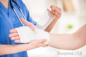 Химический ожог кожи: лечение в домашних условиях, первая помощь