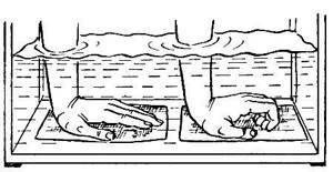 Лечебная гимнастика при переломе лучевой кости руки: упражнения