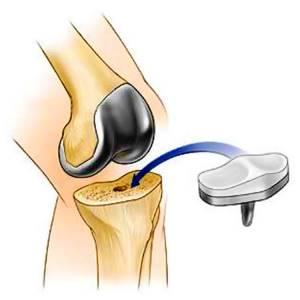 Какое упражнение делать после операции коленного суставов