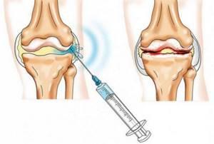 Уколы в коленный сустав при артрозе: препараты, гиалуроновая кислота