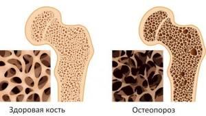 Синдром Зудека после перелома лучевой кости руки: как лечить, лечение