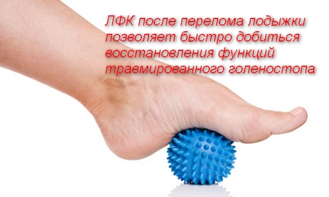 Лечебная гимнастика после перелома лодыжки в домашних условиях: зарядка, ЛФК