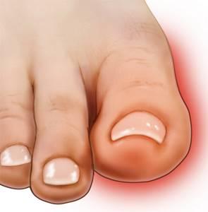 Опух большой палец на ноге без причины и болит: что делать