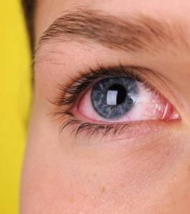 Ожог глаза сваркой: что делать, лечение в домашних условиях