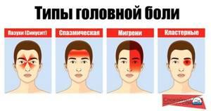 Болит голова от недосыпания: головная боль, что делать