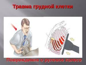 Ушиб ребра: симптомы и лечение, болит, синяк, помощь при ушибе