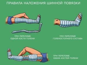 Основные правила наложения транспортной шины при переломе костей голени