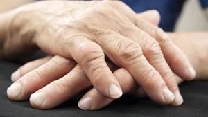 Болят суставы пальцев рук: причины и лечение, боли, что делать