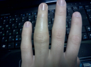 Ушиб большого пальца на руке: сустава, фаланги