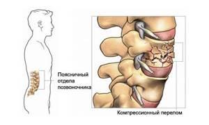 Компрессионный перелом позвоночника у пожилых людей: лечение