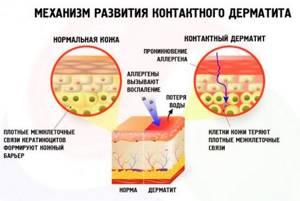 Болят соски: при кормлении грудью, после, что делать, профилактика