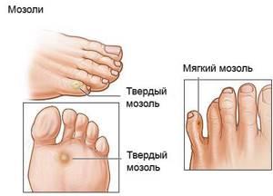 Мозоль между пальцами на ноге болит со стержнем: лечение