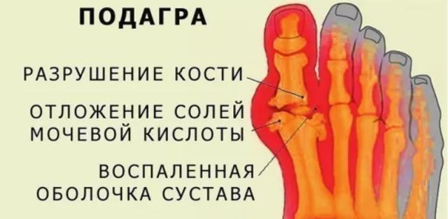 Болят ступни ног по утрам при наступании: больно ходить, причины