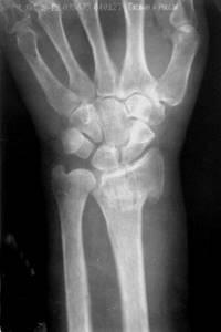 вниманию перелом нижнего конца лучевой кости фото демакияж