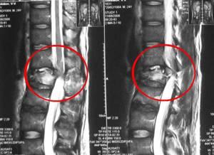 Перелом позвоночника: лечение и реабилитация, первая помощь