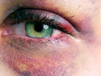 Гематома на лице после удара: лечение, как лечить