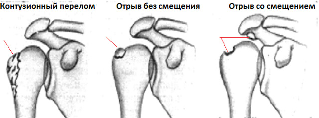 Перелом большого бугорка плечевой кости: без смещения, лечение