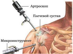 Боль в плечевом суставе левой руки: причины, лечение