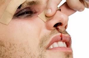 Перелом носа со смещением: лечение, костей