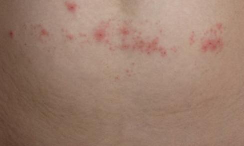 Водянистые пузырьки на коже: скопление, лечение