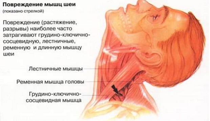 Болит шея сзади: почему, основные причины, у ребенка, что делать