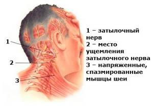 Боль в затылочной части головы слева: причины, болит