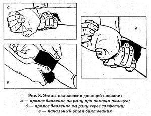 Порезы на руках: глубокий порез, что делать, помощь, скрыть резанные