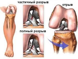Разрыв связок коленного сустава: сколько времени заживает, как долго