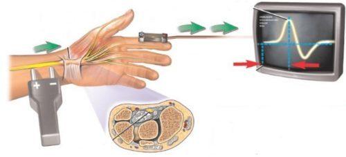 Немеют мизинцы на руках: почему, причины, от чего, что делать