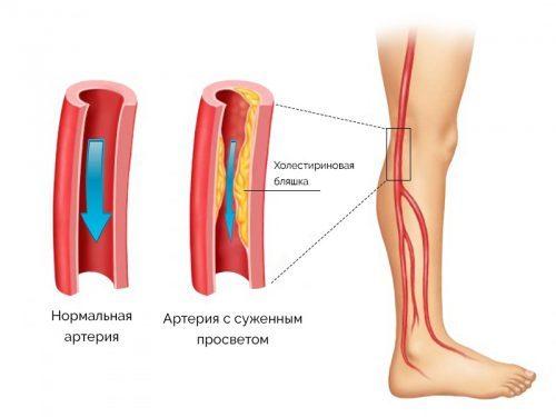 Немеет левая нога от колена до стопы: причины, почему онемела