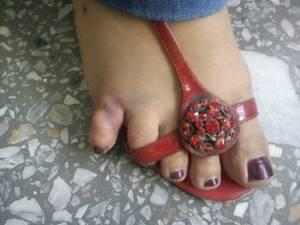 Перелом мизинца на ноге: симптомы, как определить