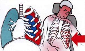 Первая помощь при повреждении грудной клетки