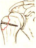 Перелом проксимального отдела плечевой кости: конца