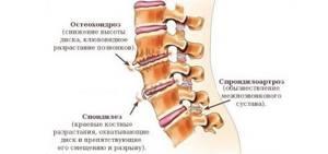 Очень сильно болит голова: сильные головные боли, что делать