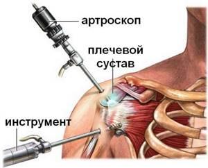 Вывих плечевого сустава: привычный, лечение в домашних условиях